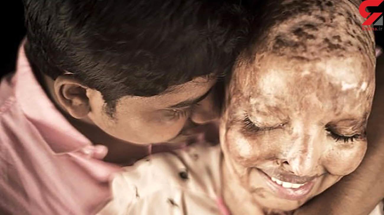 عکس این عروس سوخته جهان را تکان داد! / کینه اسیدی!+  عکس ها
