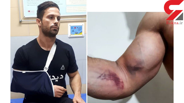 حمله مرموز به بدنساز تهرانی در مسیر فرودگاه رشت / جمعه شب گذشته رخ داد