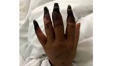 زخمی کوچک انگشتان دست یک زن را به صورت وحشتناکی خورد +عکس+16