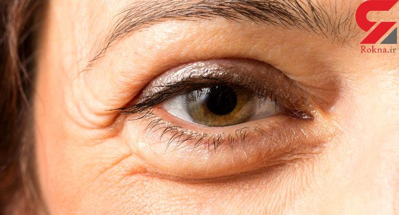 از بین بردن پف زیر چشمها با ساده ترین روش ها