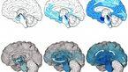 ابتلا به آلزایمر با مدل رایانه ای شبیه سازی شد