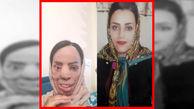 اسیدپاشی در افسریه چهره زیبای این زن را وحشتناک کرد+ عکس
