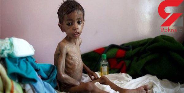 افزایش شمار مبتلایان به وبا در یمن به علت جنگ و محاصره این کشور