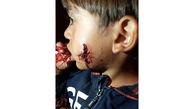 عکس 16+ / صورت کودک پرندی توسط سگ دریده شد