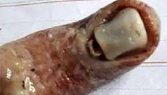پیدا شدن انگشت بریده انسان داخل سوپ رستوران! + عکس