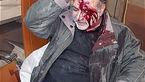 زنده ماندن مرد تهرانی در ریزش سقف مغازه اش + تصاویر
