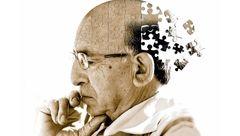 خطر زوال عقل با بیماری های پوستی در ارتباط است