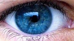 5 راهکار سلامت چشم ها