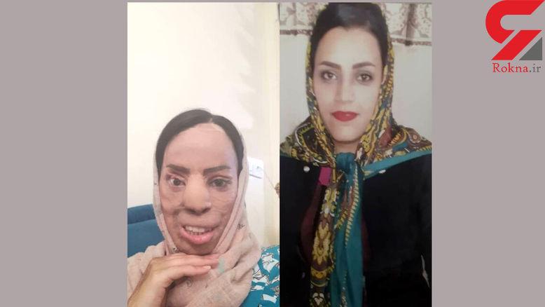 فاطمه زنی زیبارو بود که همسر برادرش سیمای او را از بین برد+ عکس دردناک