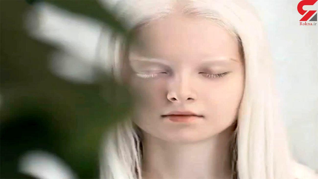 دختر بیمار چرا زیباتر شد + فیلم