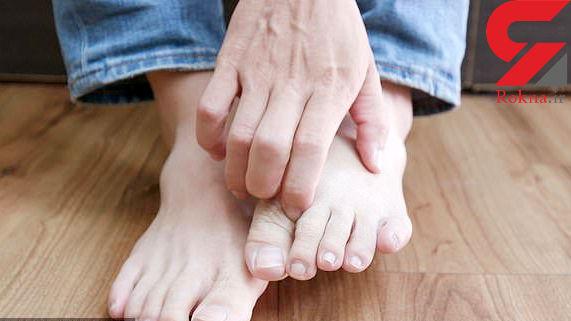 نشانه هایی ساده در پا که از بیماریهایی وحشتناک خبر میدهند