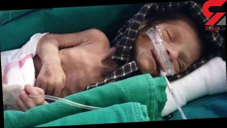 نوزاد دختر پس از ۲ روز در قبر زنده شد + عکس / هند