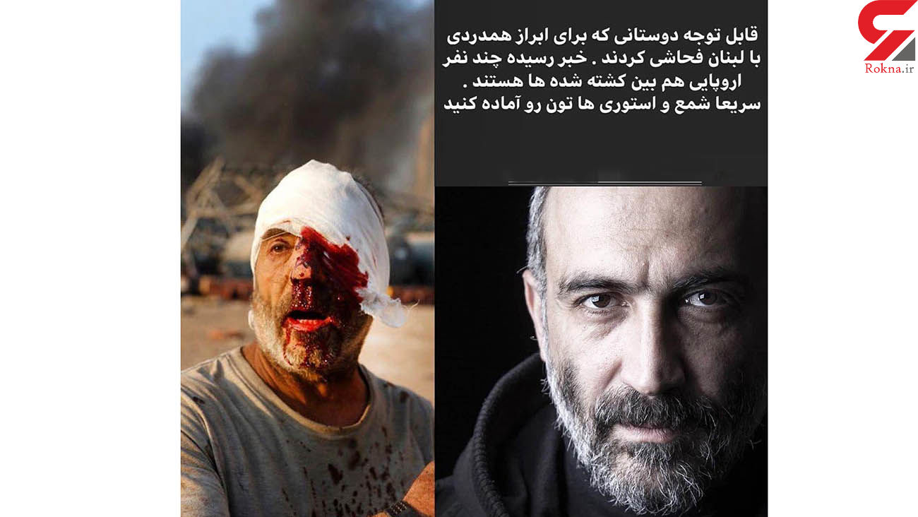 واکنش حجازی فر به توهین مردم در اینستاگرام / انفجار بیروت غم انگیز بود + عکس