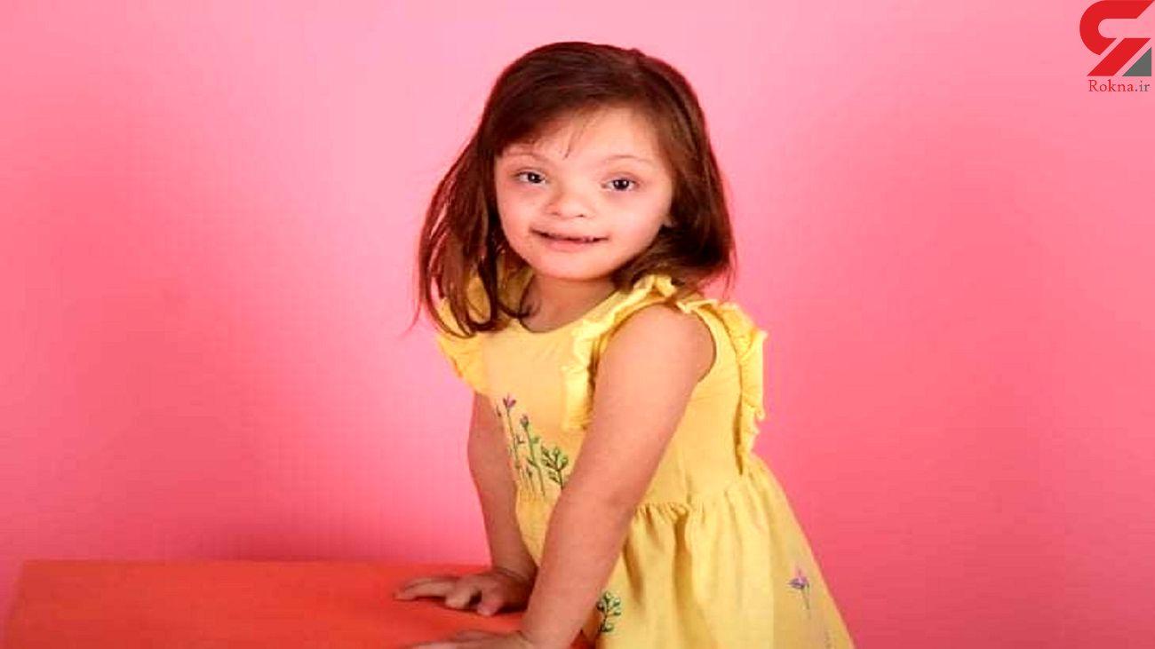 مدلینگ شدن کودک مبتلا به سندرم داون + عکس