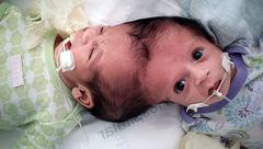 ساعت ها عمل روی لاله و لادن برزیلی / سرنوشت زیبای این 2 نوزاد+عکس