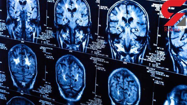 عوامل خطرساز بیماری پارکینسون