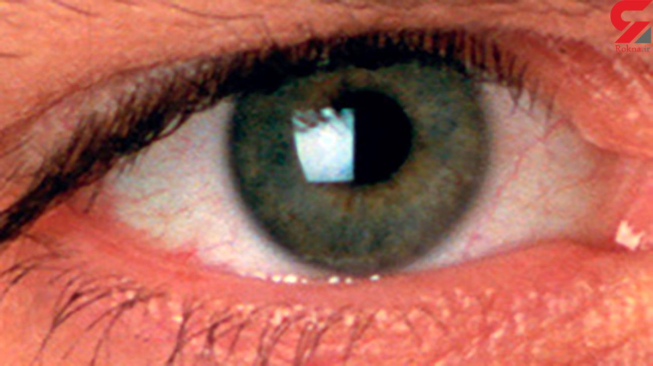 سرماخوردگی چشم و ردپای ویروس!