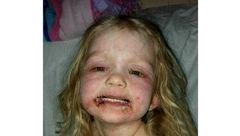 لوازم آرایشی صورت دختری را زشت کرد / این دختر بستری شد! + عکس ها