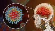 سکته مغزی ۲۵ مبتلا به کرونا ویروس در تهران +فیلم