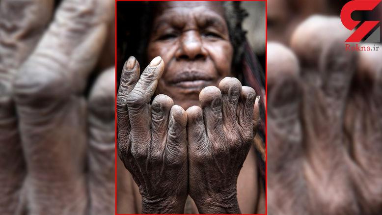 از پختن روزمره بقایای جسد اجداد تا قطع انگشتان زنان!+عکس