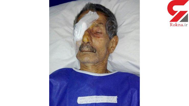 عمل جراحی چشم راست یک بیمار به جای چشم چپ او در نوشهرجنجال به پا کرد!+عکس