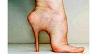 خنده دار ترین جراحی زیبایی که مد شد+عکس