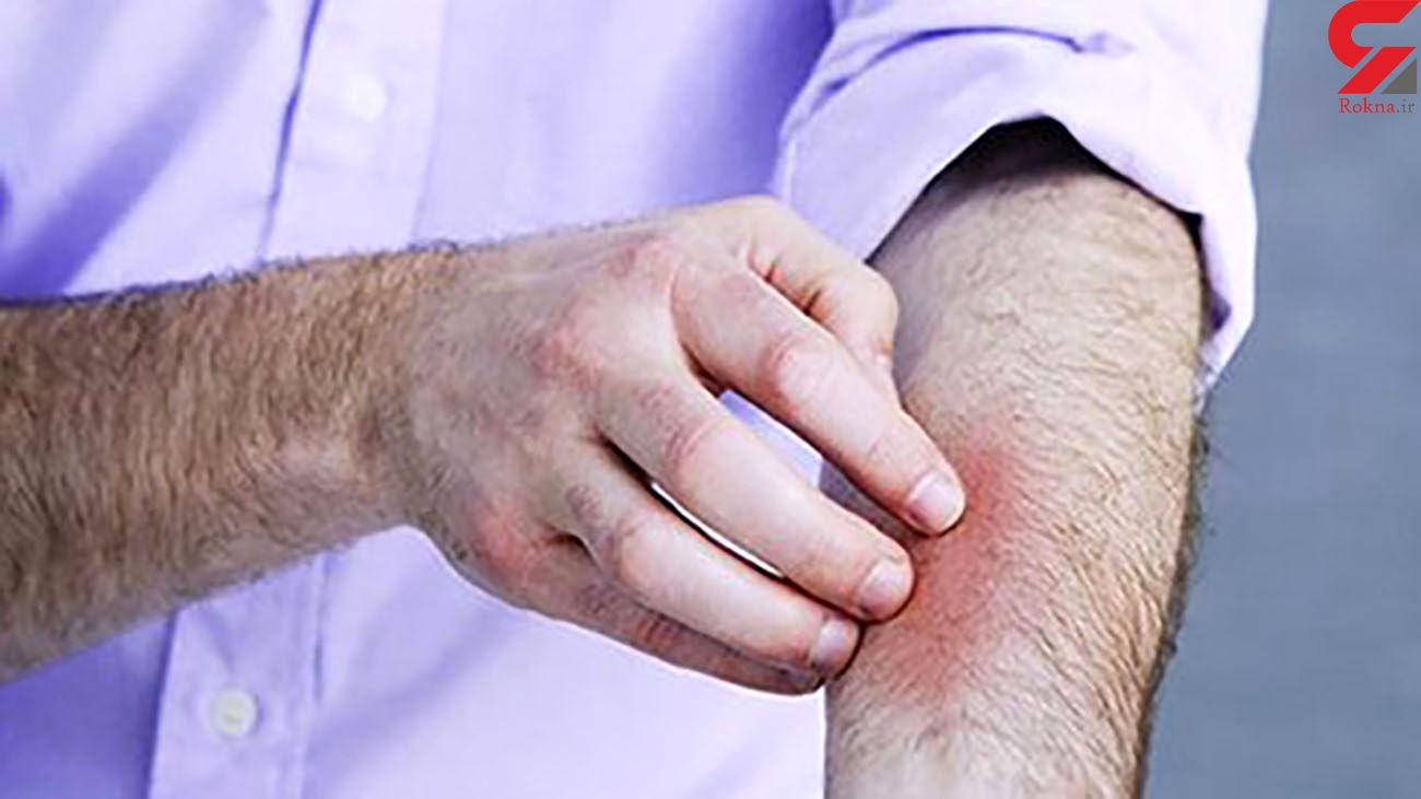 احتمال انتقال «کرونا» از طریق پوست آسیب دیده