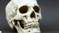 Human Skull on Mantelpiece Identified as Man Missing For 8 Years