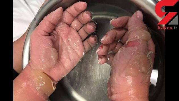 عجیب ترین دلیل کنده شدن پوست دستان دختر 19 ساله !+عکس
