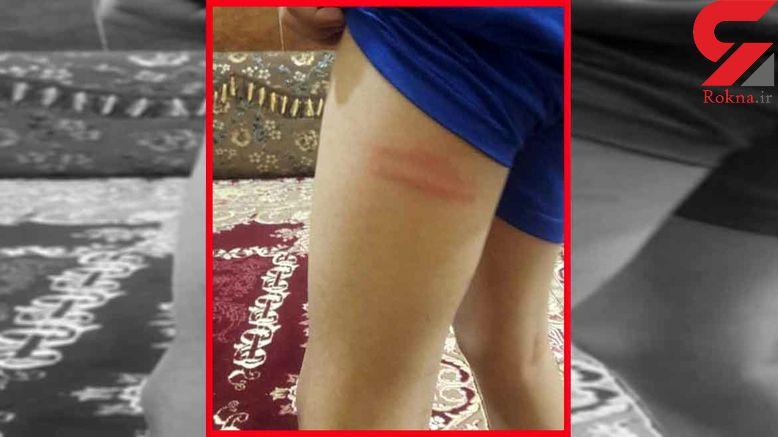 تنبیه بدنی دانشآموزان در بندرماهشهر توسط ناظم !