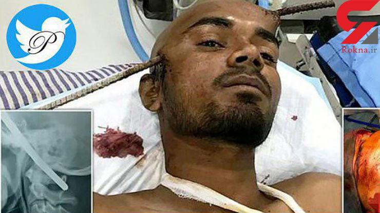 حادثه ای باورنکردنی قربانی اش زنده ماند / فرورفتن میلگرد در سر کارگر 21 ساله هندی+ عکس دلخراش