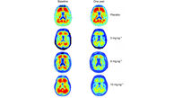 Novel Form of Alzheimer's Protein Found in Spinal Fluid Indicates Stage of Disease