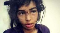 فیلم تلخ ترین گفتگو / مادر اجازه دیدن دختر شکنجه دیده توسط نامادری را ندارد