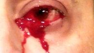 خون گریه کردن مرد ایتالیایی+عکس باورکردنی