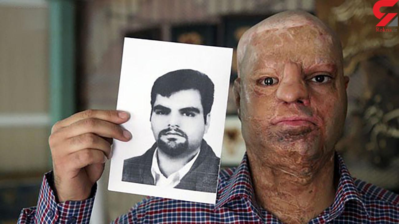 عکس قبل و بعد اسیدپاشی / گفتگو با محسن که با اسید سوخت